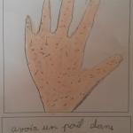 Avoir un poil dans la main